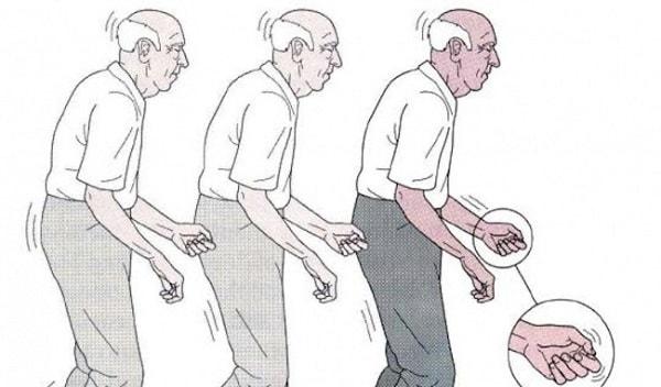 bệnh parkinson sống được bao lâu? 1