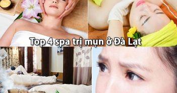 Top 4 spa trị mụn ở Đà Lạt hiệu quả nhất